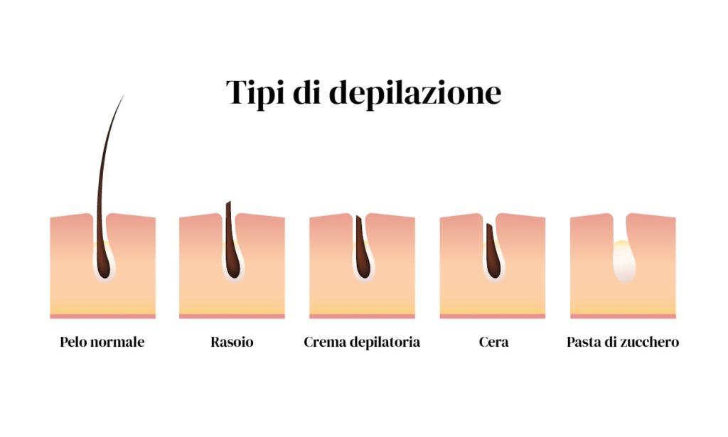 Tipologie di depilazione