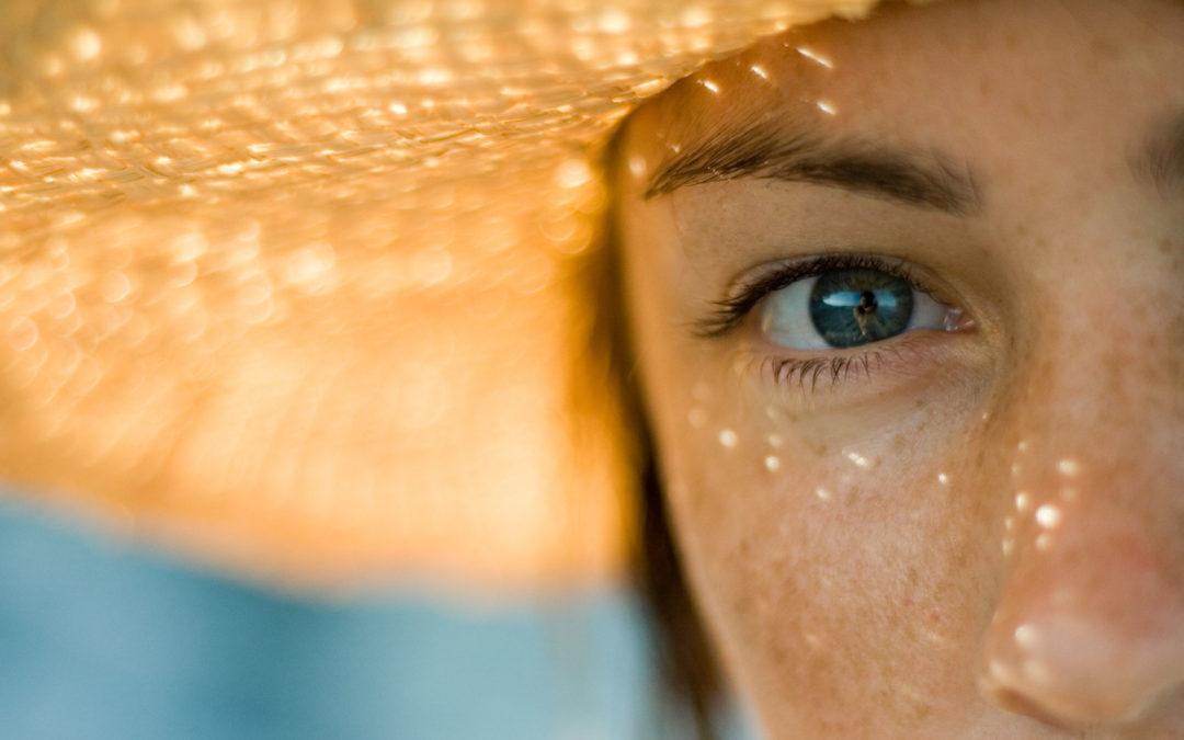 Il Melasma: cause e prevenzione